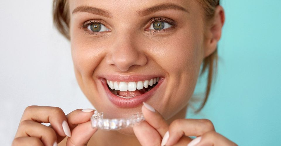 Invisalign braces can easily and quickly straighten your teeth